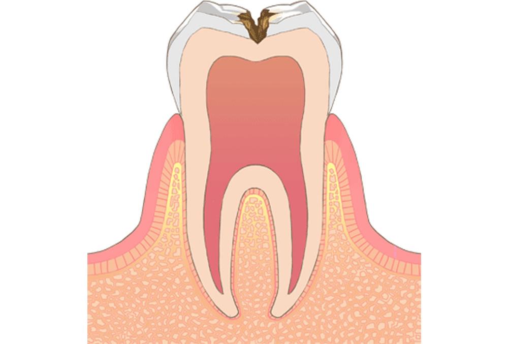 象牙質の虫歯(C2)
