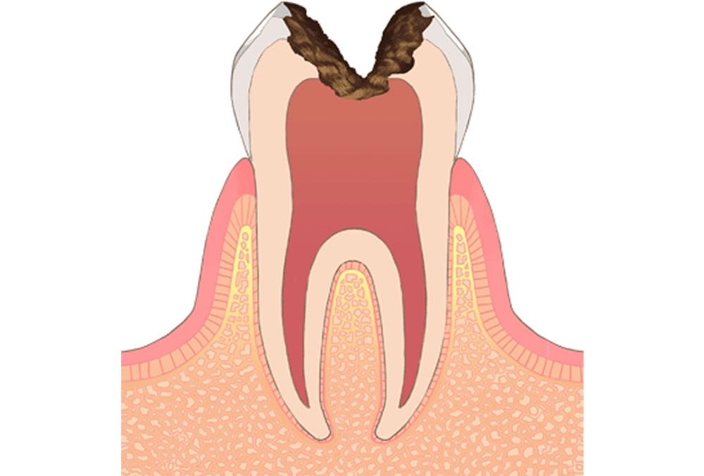 歯の神経に達した虫歯(C3)