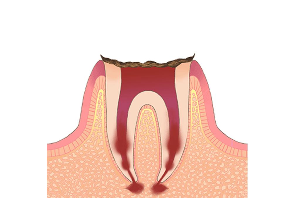 末期の虫歯(C4)