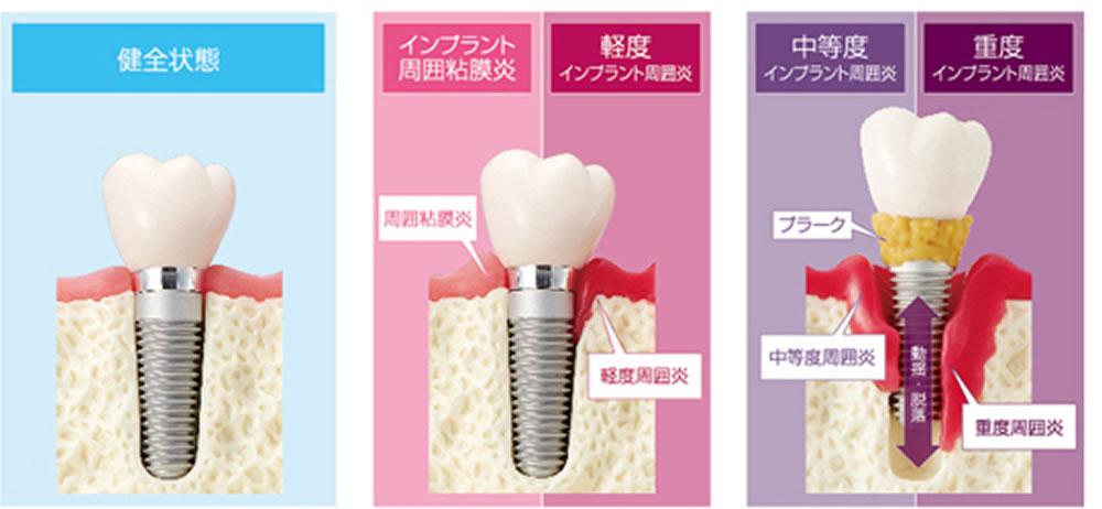 インプラントの歯周病
